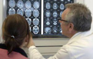 epilepsia diagnostico Kalapa Clinic