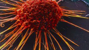 cancer metastasis cannabinoides