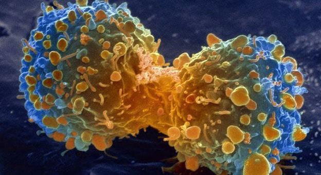 Cancer y Cannabinoides | Kalapa Clinic