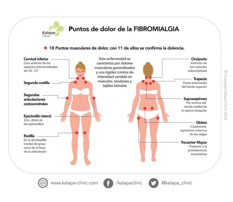 Tratamiento fibromialgia cannabis medicinal | Kalapa Clinic