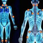 fibromialgia y marihuana medicinal | Kalapa Clinic