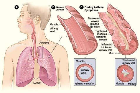 Behandlung von Asthma