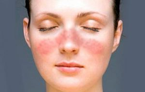 Tratamiento enfermedad autoinmune cannabinoides | Kalapa Clinic