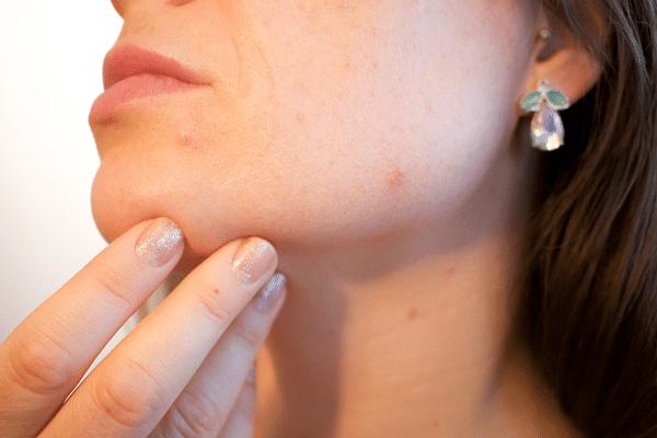 cannabis médicinal acne
