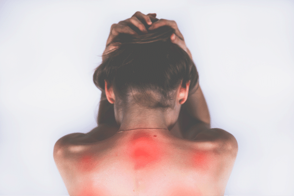 fibromialgia-fibromyalgia-fibromyalgie
