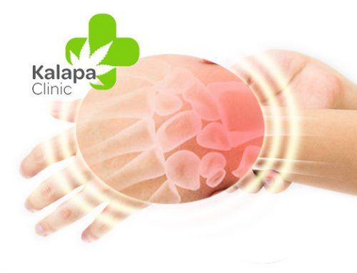 Curar fracturas de hueso con cannabis medicinal