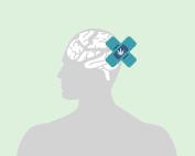 traumi cerebrali- schaedel-hirn-trauma-traumatismes cérébraux-brain traumas-traumatismos cerebrales