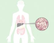 higado graso- fatty liver-Stéatose hépatique-fegato grasso-fettleber