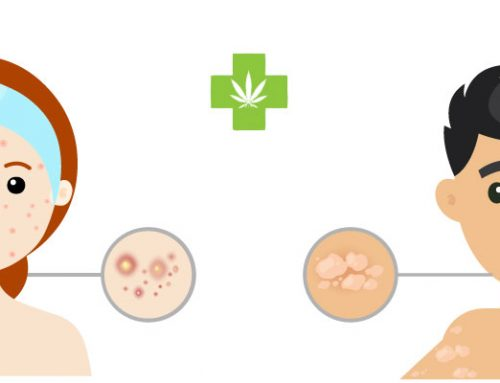 Using Cannabidiol to treat non life threatening skin conditions