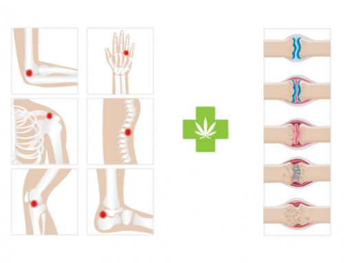 The use of medical Cannabis to treat osteoarthritis and arthritis