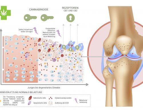 Cannabinoide können den Wiederaufbau von Knorpelgewebe unterstützen