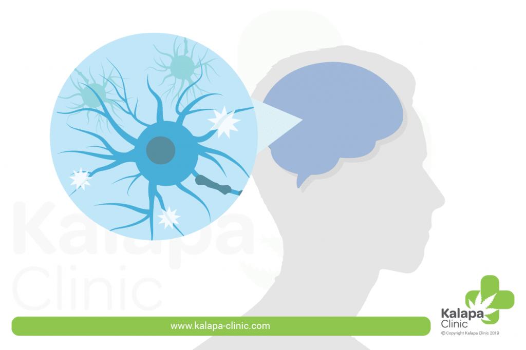 Multiple Sklerose und medizinisches Cannabis | Kalapa Clinic