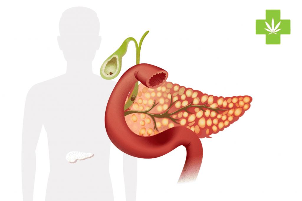 acute pancreatitis pancréatites aigües