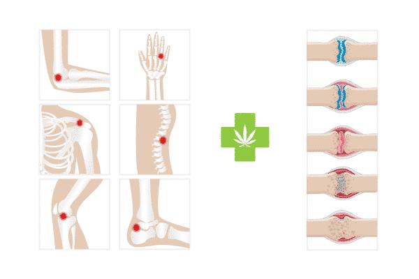 arthritis-l'arthrite-l'osteoartrite-artritis