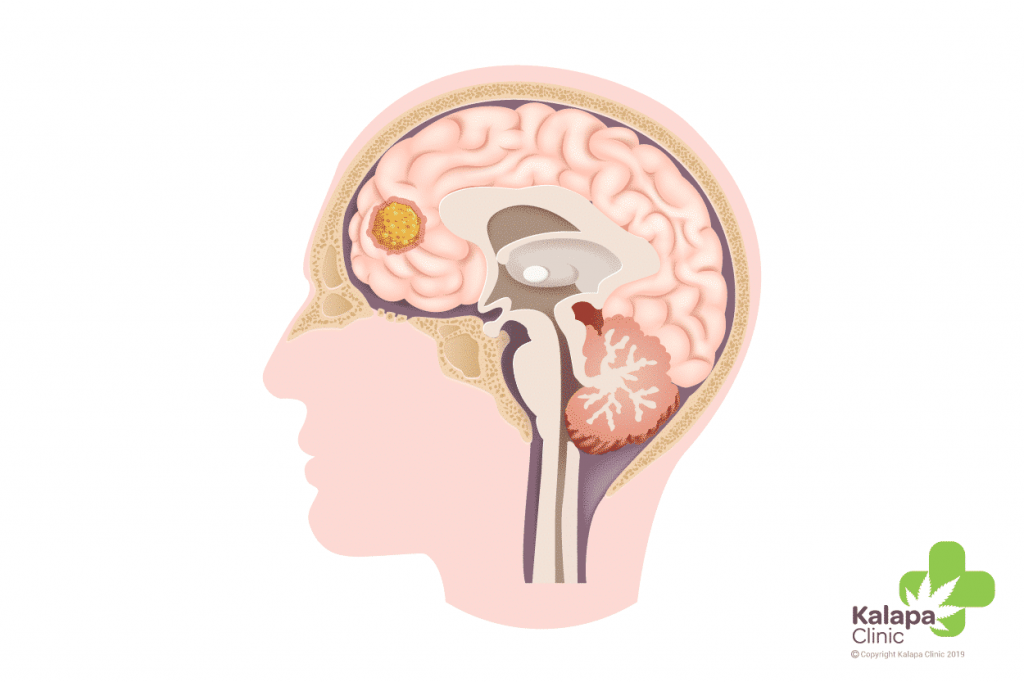 cerveau avec glioma