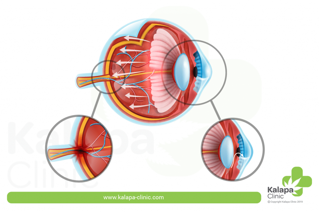 Il Glaucoma e la Cannabis Medicinal | Kalapa clinic
