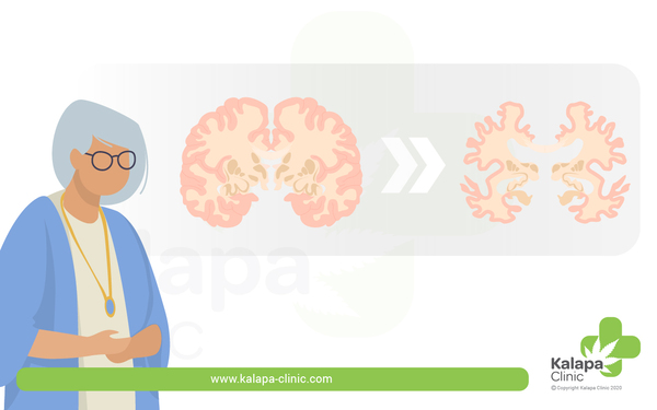Alzheimer und medizinisches Cannabis | Kalapa Clinic