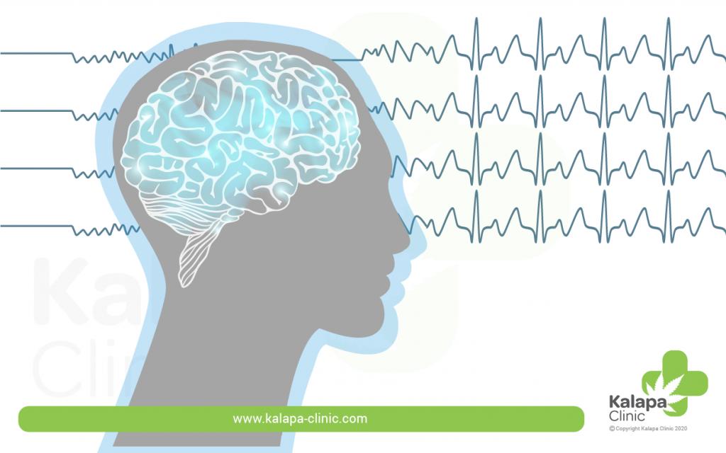 Epilepsia y El Cannabis Medicinal | Kalapa Clinic