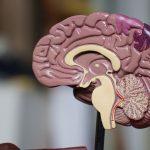 brain HIE encefalopatía
